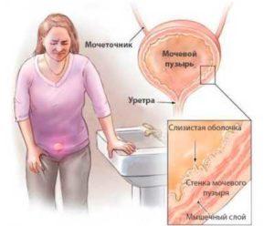 Посткоитальный цистит: причины, симптомы и лечение