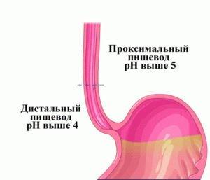 Уровень кислотности пищевода