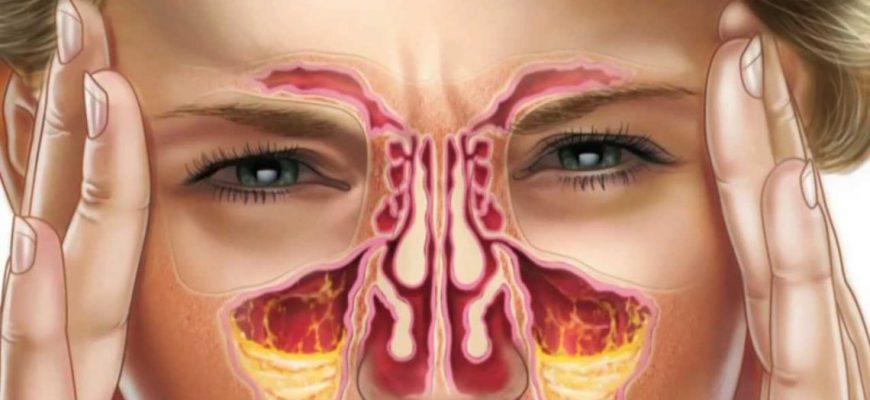 Гайморит – симптомы и лечение у взрослых, признаки развития, препараты. Лечение антибиотиками, промывание, виды гайморита.
