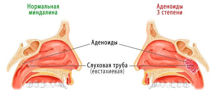 Симптомы аденоидов и степени их развития. Фото