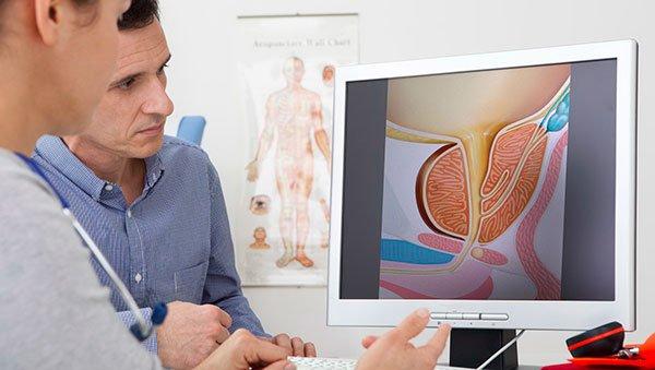 Как лечить аденому простаты? Лечение аденомы простаты