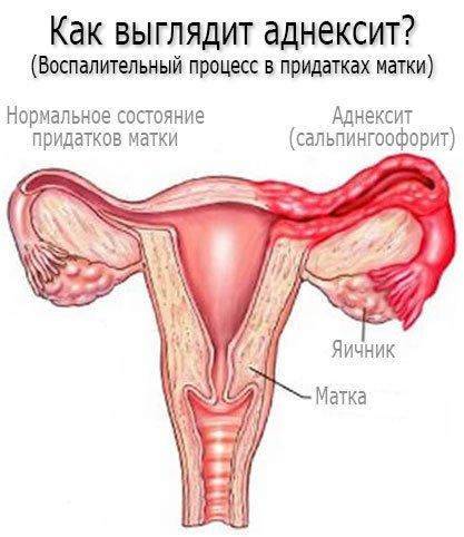 Как выглядит аднексит? Симптомы аднексита (сальпингоофорита)