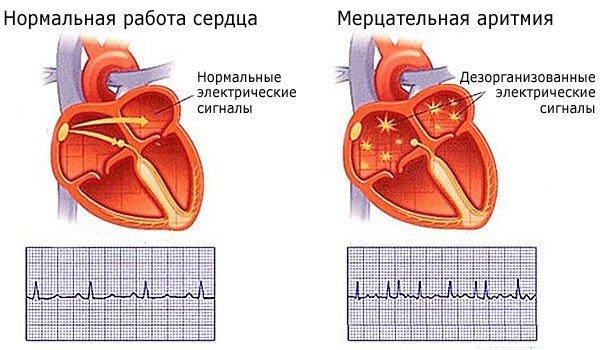 Нормальная работа сердца и мерцательная аритмия