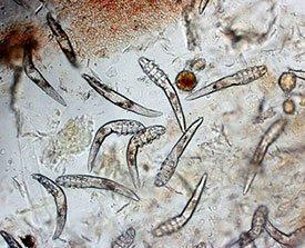Причины блефарита - клещи демодекс