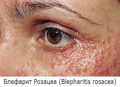 Блефарит Розацеа (Blepharitis rosacea)
