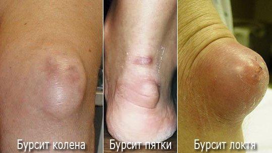 Симптомы бурсита - бурсит колена, локтя и пятки