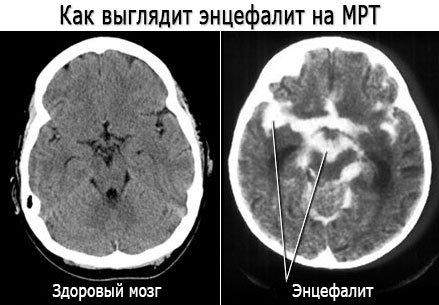 Как выглядит энцефалит на МРТ. Фото энцефалита
