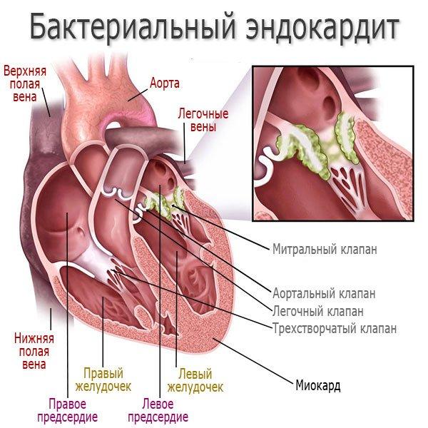 Бактериальный эндокардит - развитие