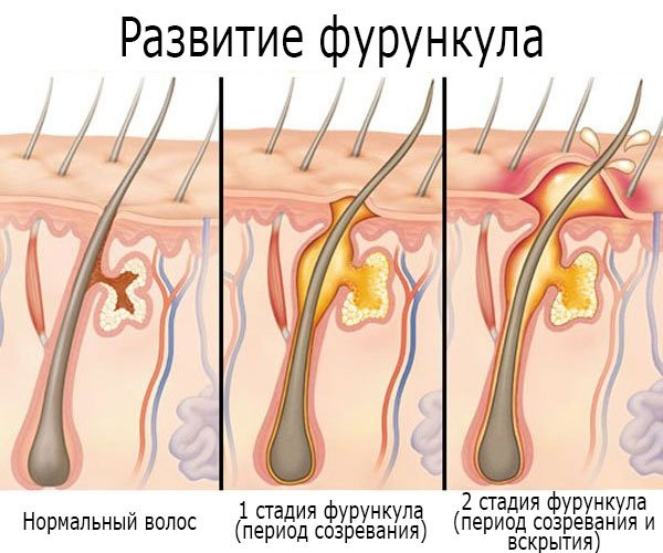 Развитие (стадии) фурункула