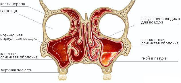 Гайморит (лат. Highmoritis). Описание, причины, виды, диагностика, профилактика и лечение гайморита