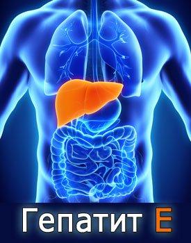 Гепатит Е - симптомы, причины, диагностика и лечение гепатита E