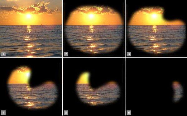 Развитие глаукомы - стадии