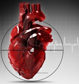 Инфаркт миокарда. Причины, симптомы, первая помощь и лечение