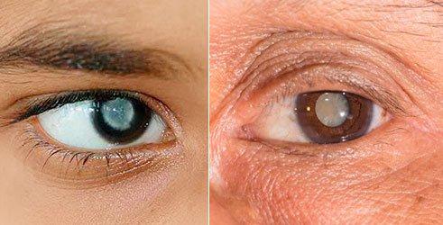 Признаки катаракты