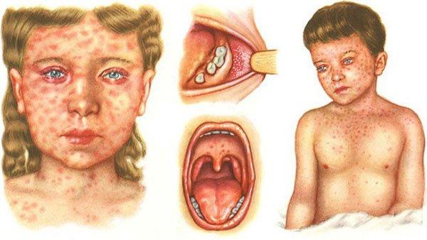 Развитие и симптомы кори. Сыпь при кори