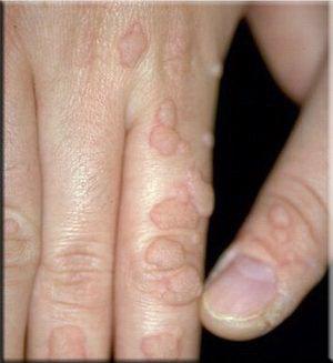 Обыкновенные, или простые бородавки (common warts)