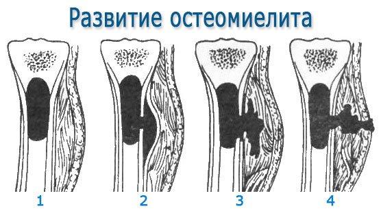 Развитие остеомиелита