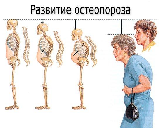 Развитие остеопороза - патогенез