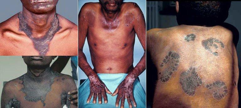 Симптомы пеллагры