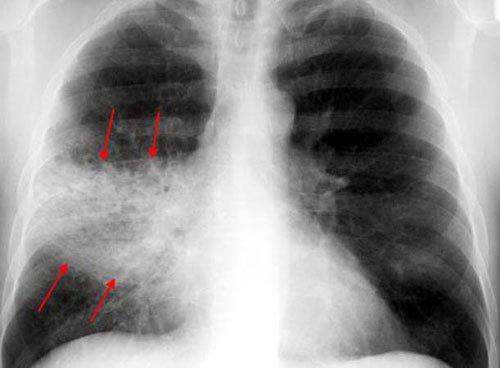 Пневмония: затемнение на рентгене