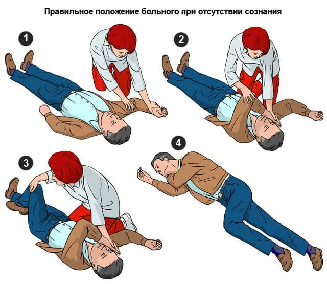 положение тела при потере сознания