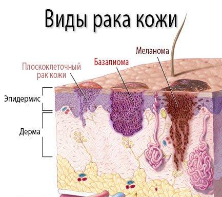 Виды рака кожи - меланома, базалиома и плоскоклеточный рак кожи