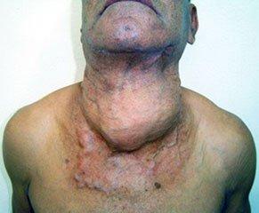 Симптомы рака - Рак щитовидной железы