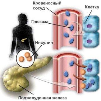 Как развивается сахарный диабет