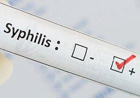 Виды сифилиса
