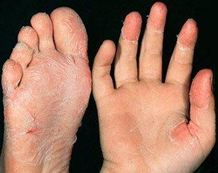 Признаки скарлатины - сухие ладони и подошвы ног