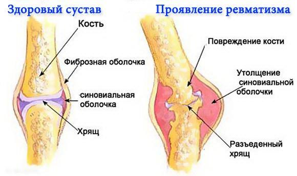 Симптомы ревматизма