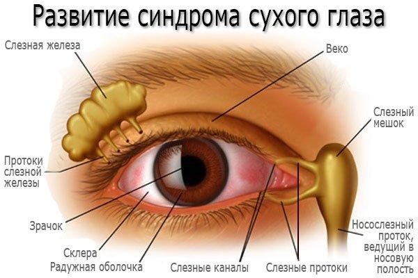 Развитие синдрома сухого глаза