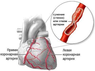 Причины стенокардии