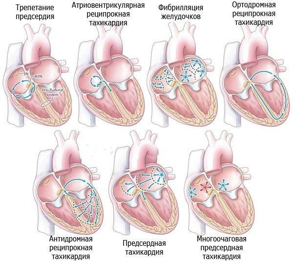 Виды тахикардии