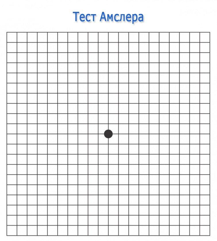 Тест Амслера (сетка Амслера, решетка Амслера)