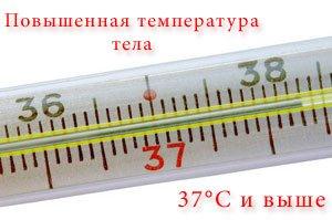 Повышенная и высокая температура тела