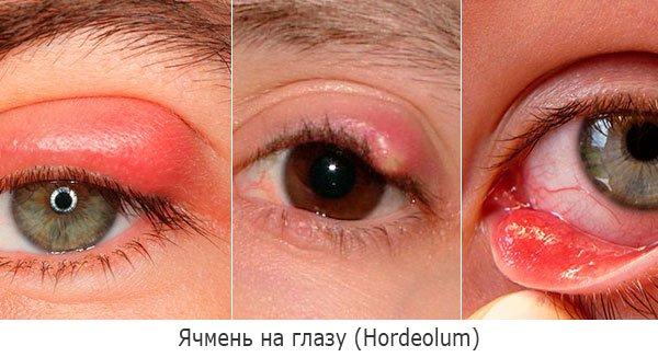 Ячмень на глазу (гордеолум, hordeolum)
