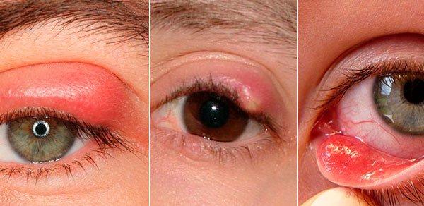 Ячмень на глазу – симптомы