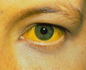 Желтуха – симптомы