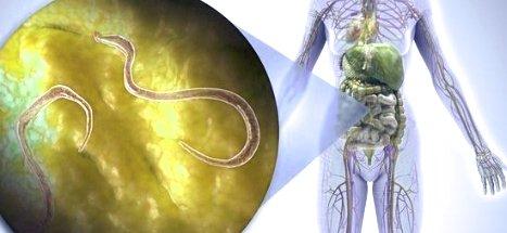 Паразиты внутри кишечника