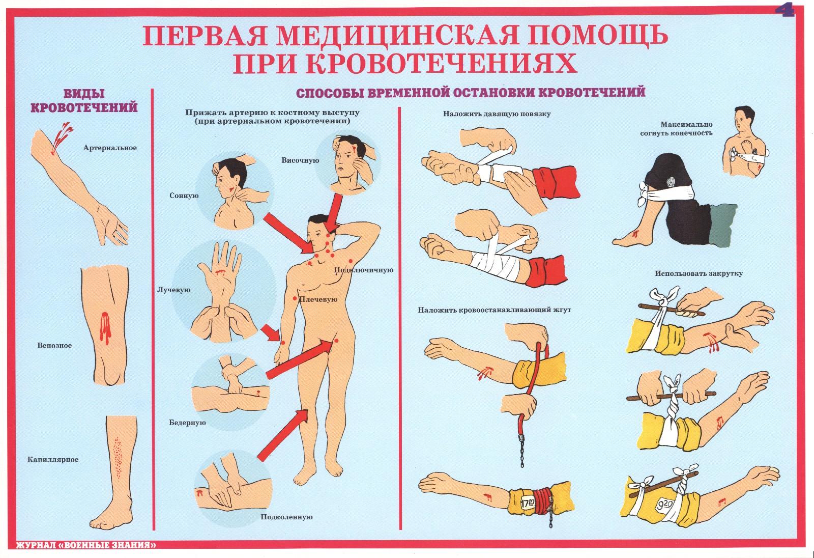 Оказания первой медицинской помощи картинки при