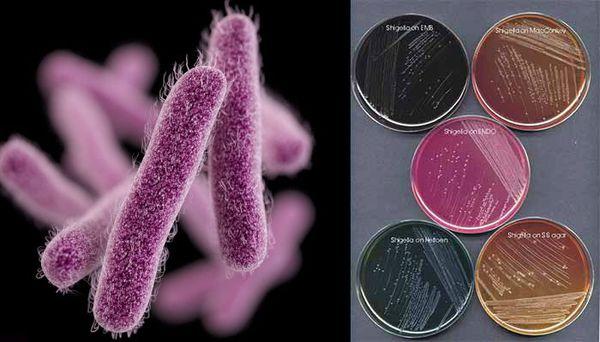 Бактерии Шигелла