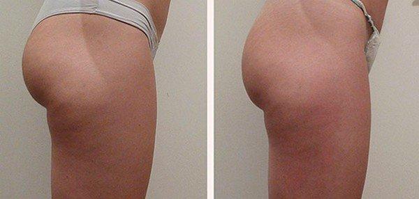 Фото до и после курса процедур мезодиссолюции №3