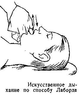 Искусственное дыхание. Как делать, что это, способы, правила, признаки успешного проведения, виды