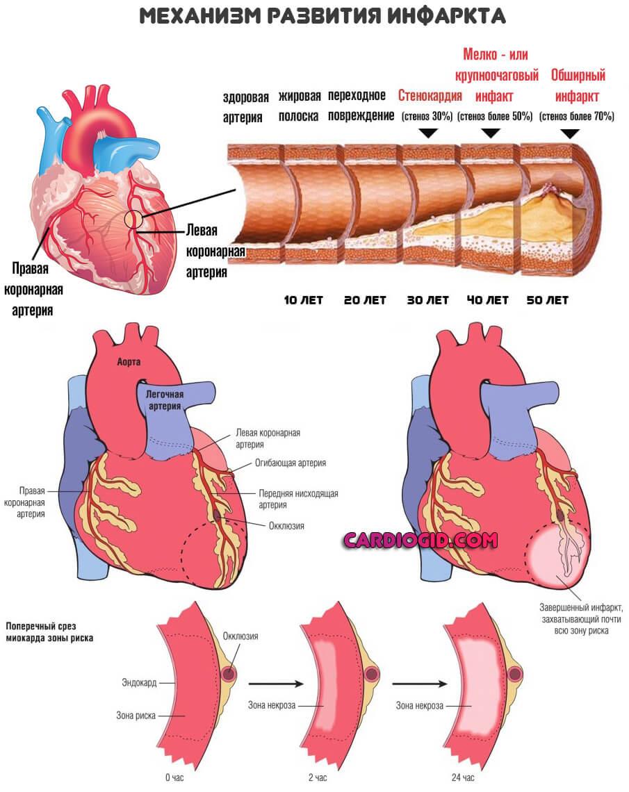 патогенез инфаркта