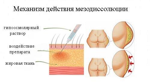 Воздействие гипоосмолярного раствора на жировую ткань