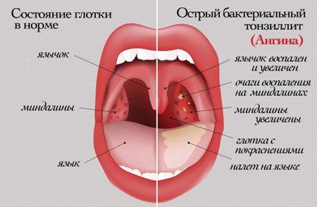 состояние горла при тонзилите